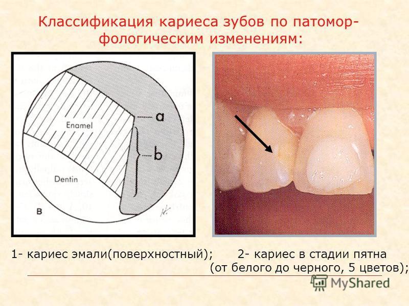 Классификация кариеса зубов по патомор- ууфологическим изменениям: 2- кариес в стадии пятна (от белого до черного, 5 цветов); 1- кариес эмали(поверхностный);