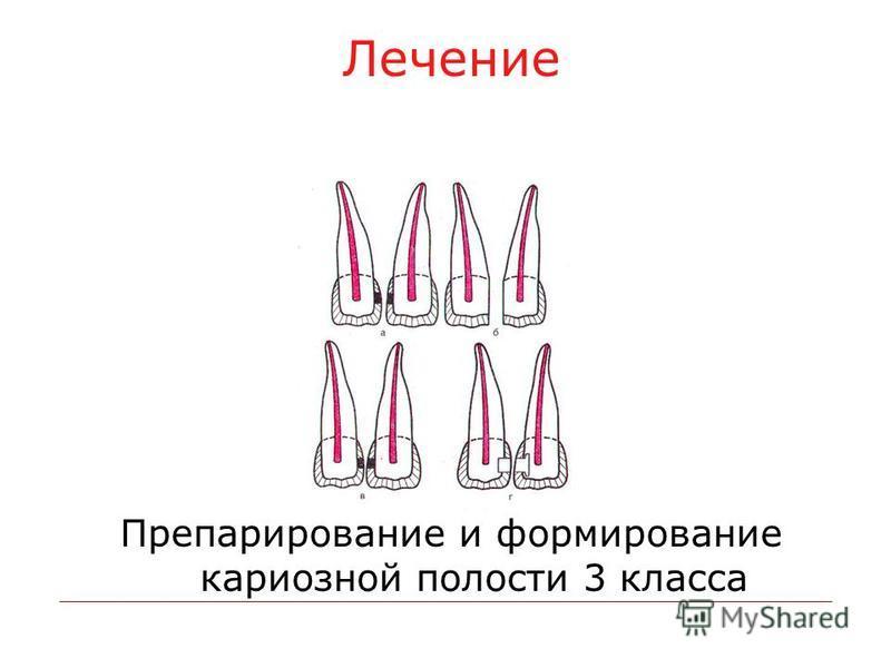 Лечение Препарирование и формирование кариозной полости 3 класса