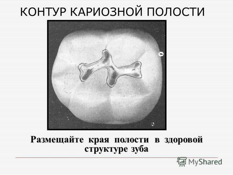 КОНТУР КАРИОЗНОЙ ПОЛОСТИ Размещайте края полости в здоровой структуре зуба
