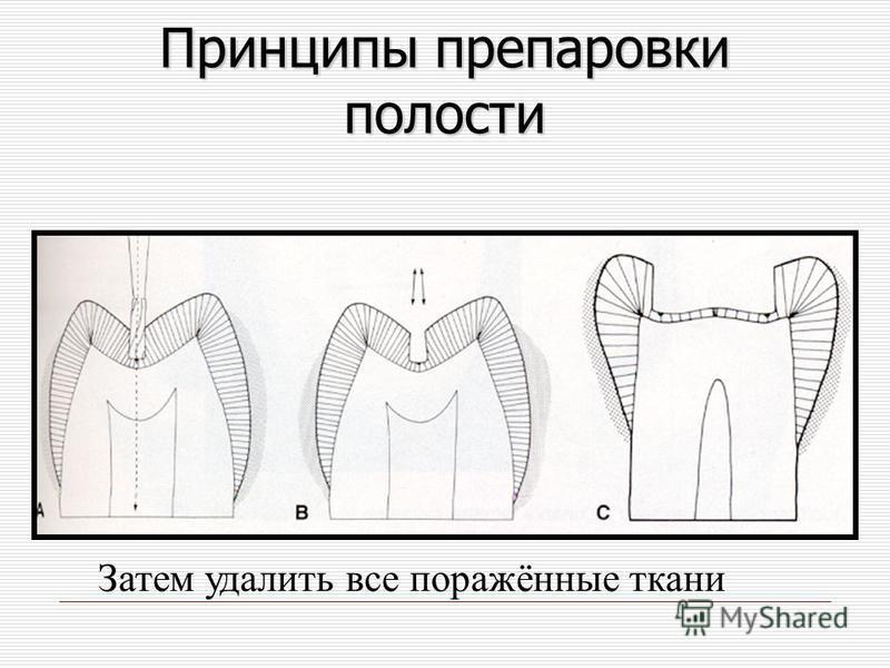 Принципы препаровки полости Затем удалить все поражённые ткани