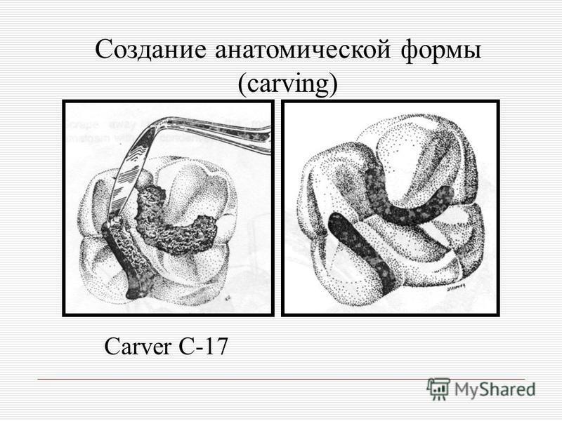 Создание анатомической формы (carving) Carver C-17