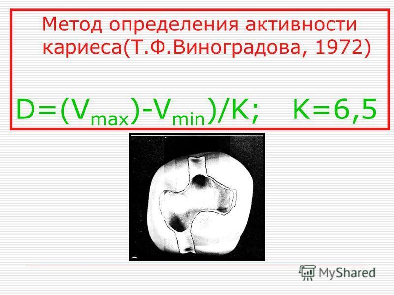 Метод определения активности кариеса(Т.Ф.Виноградова, 1972) D=(V max )-V min )/K; K=6,5