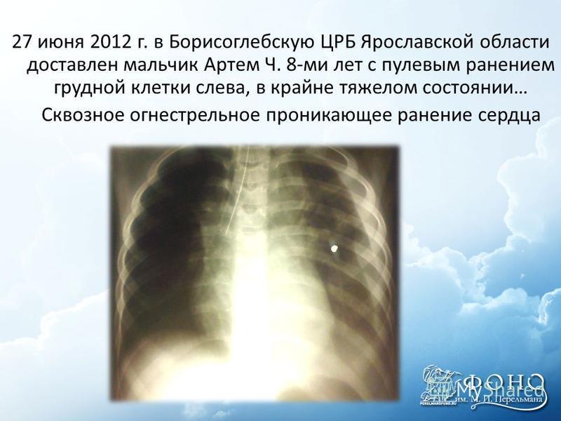 27 июня 2012 г. в Борисоглебскую ЦРБ Ярославской области доставлен мальчик Артем Ч. 8-ми лет с пулевым ранением грудной клетки слева, в крайне тяжелом состоянии… Сквозное огнестрельное проникающее ранение сердца
