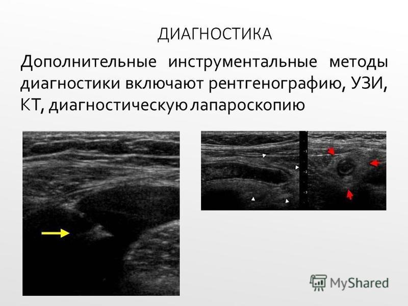 ДИАГНОСТИКА Дополнительные инструментальные методы диагностики включают рентгенографию, УЗИ, КТ, диагностическую лапароскопию