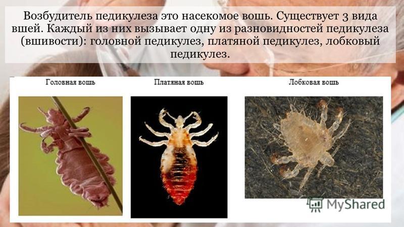 Возбудитель педикулеза это насекомое вошь. Существует 3 вида вшей. Каждый из них вызывает одну из разновидностей педикулеза (вшивости): головной педикулез, платяной педикулез, лобковый педикулез.