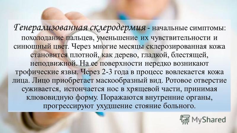 Генерализованная склеродермия - начальные симптомы: похолодание пальцев, уменьшение их чувствительности и синюшный цвет. Через многие месяцы склерозированная кожа становится плотной, как дерево, гладкой, блестящей, неподвижной. На ее поверхности нере