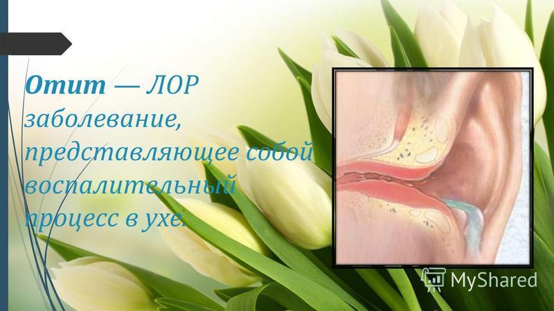 Отит ЛОР заболевание, представляющее собой воспалительный процесс в ухе.