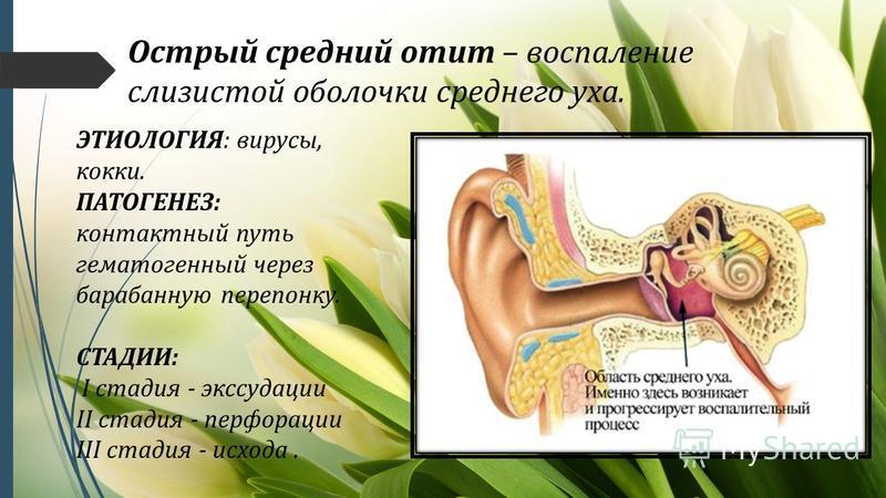 Острый средний отит – воспаление слизистой оболочки среднего уха. ЭТИОЛОГИЯ: вирусы, кокки. ПАТОГЕНЕЗ: контактный путь гематогенный через барабанную перепонку. СТАДИИ: I стадия - экссудации II стадия - перфорации III стадия - исхода.