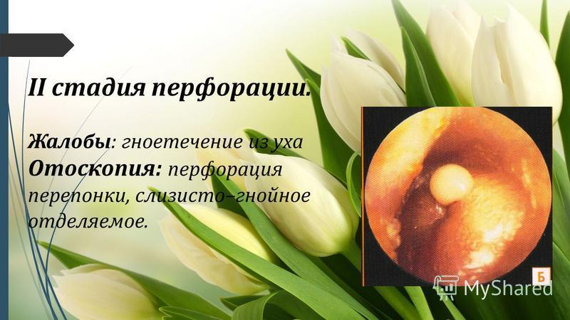 II стадия перфорации. Жалобы: гноетечение из уха Отоскопия: перфорация перепонки, слизисто–гнойное отделяемое.
