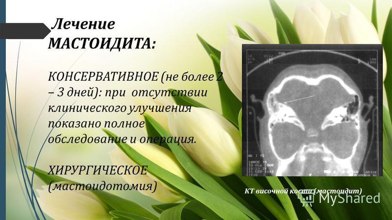 Лечение МАСТОИДИТА: КОНСЕРВАТИВНОЕ (не более 2 – 3 дней): при отсутствии клинического улучшения показано полное обследование и операция. ХИРУРГИЧЕСКОЕ (мастоидотомия) КТ височной кости (мастоидит)