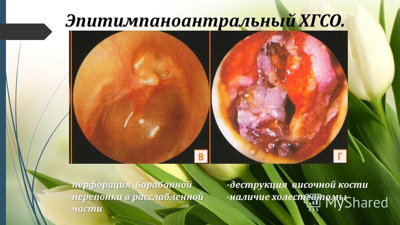 Эпитимпаноантральный ХГСО. перфорация барабанной перепонки в расслабленной части -деструкция височной кости -наличие холестеатомы