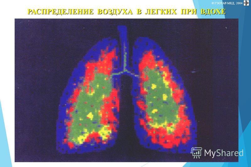 © П.Ф.Литвицкий, 2004 © ГЭОТАР-МЕД, 2004 РАСПРЕДЕЛЕНИЕ ВОЗДУХА В ЛЕГКИХ ПРИ ВДОХЕ
