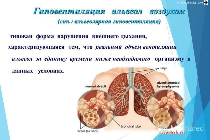 © П.Ф.Литвицкий, 2004 © ГЭОТАР-МЕД, 2004 типовая форма нарушения внешнего дыхания, характеризующаяся тем, что реальный объём вентиляции альвеол за единицу времени ниже необходимого организму в данных условиях. Гиповентиляция альвеол воздухом (сын.: а