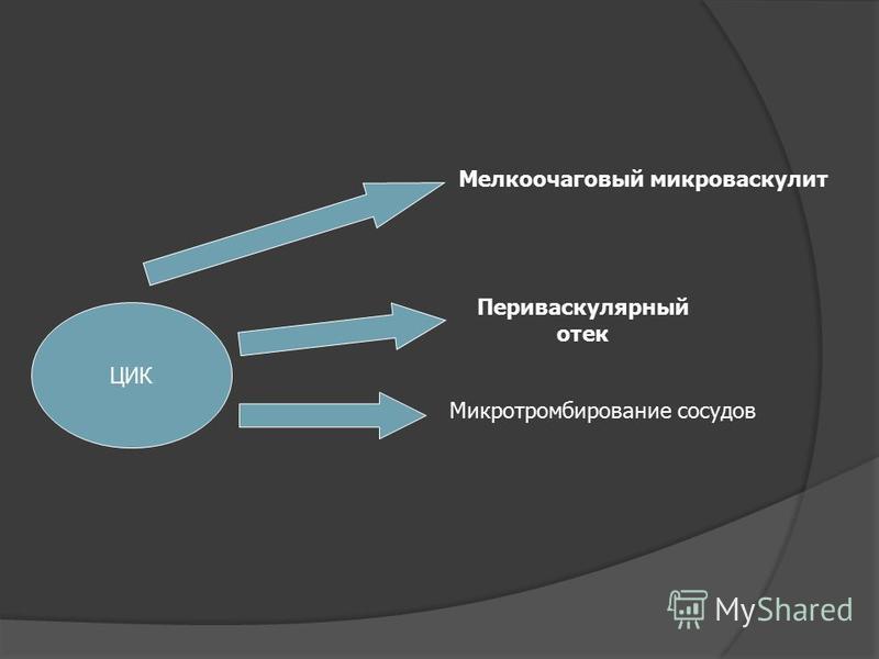 ЦИК Мелкоочаговый микро васкулит Периваскулярный отек Микротромбирование сосудов