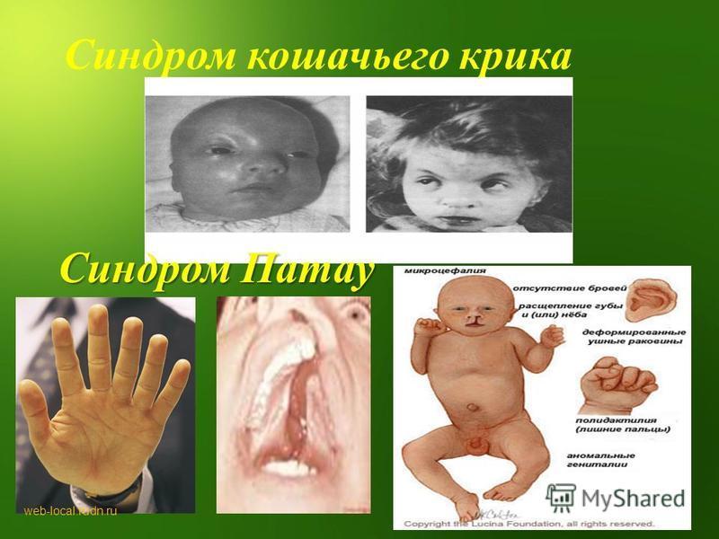 Синдром кошачьего крика Синдром Патау web-local.rudn.ru