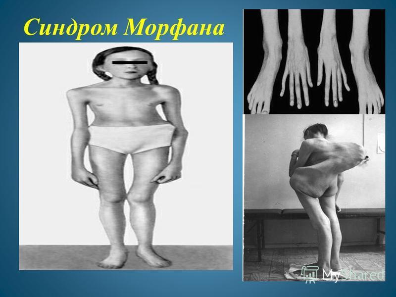Синдром Морфана