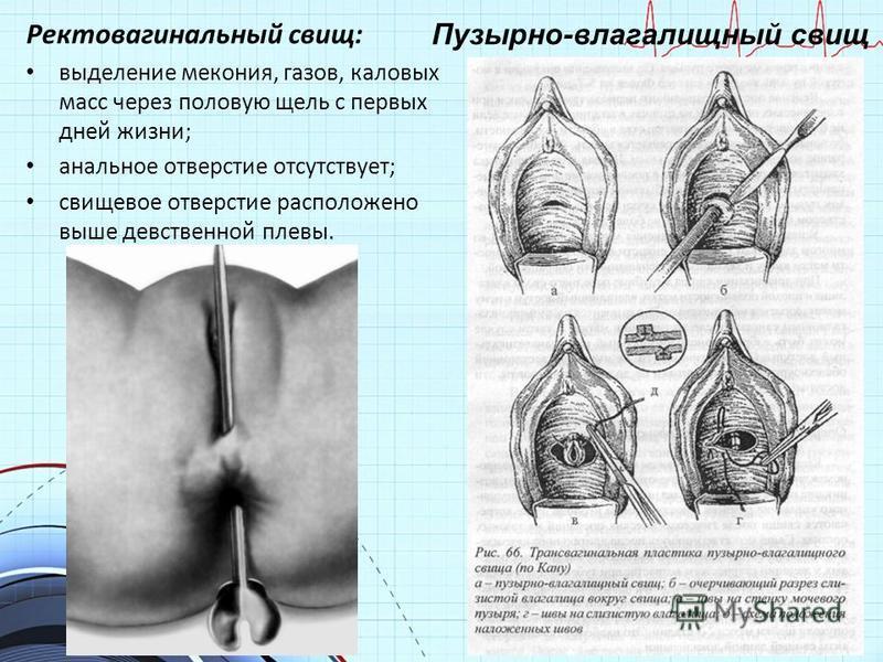Ректовагинальный свищ: выделение мекония, газов, каловых масс через половую щель с первых дней жизни; анальное отверстие отсутствует; свищевое отверстие расположено выше девственной плевы. Пузырно-влагалищный свищ