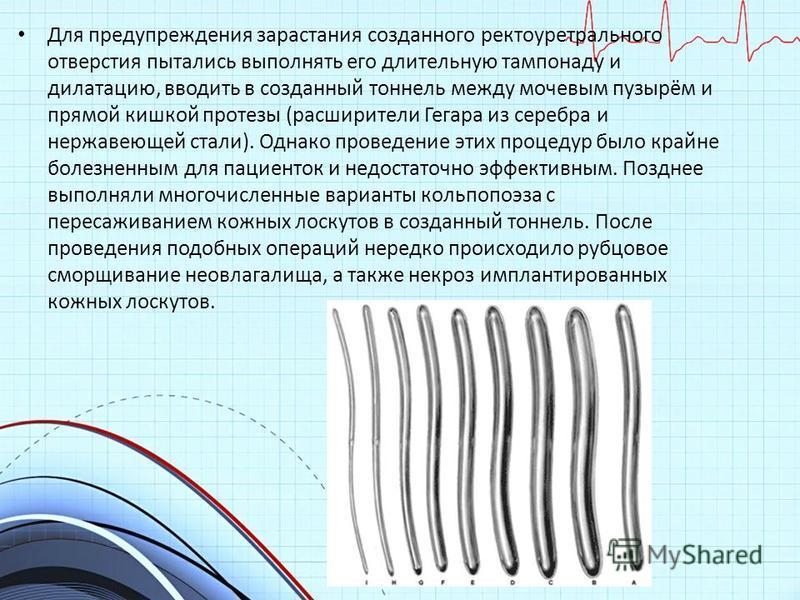 Для предупреждения зарастания созданного ректоруретрального отверстия пытались выполнять его длительную тампонаду и дилатацию, вводить в созданный тоннель между мочевым пузырём и прямой кишкой протезы (расширители Гегара из серебра и нержавеющей стал