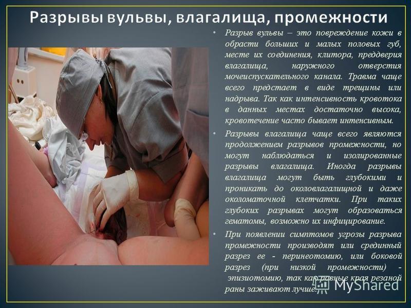 Разрыв вульвы – это повреждение кожи в обрасти больших и малых половых губ, месте их соединения, клитора, преддверия влагалища, наружного отверстия мочеиспускательного канала. Травма чаще всего предстает в виде трещины или надрыва. Так как интенсивно