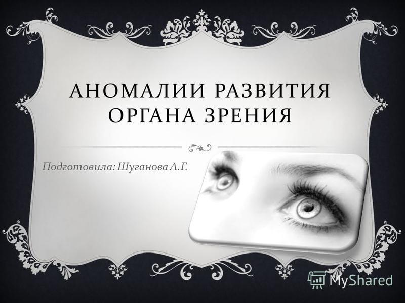 АНОМАЛИИ РАЗВИТИЯ ОРГАНА ЗРЕНИЯ Подготовила : Шуганова А. Г.