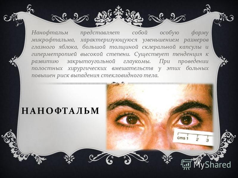 НАНОФТАЛЬМ Нанофтальм представляет собой особую форму микрофтальма, характеризующуюся уменьшением размеров глазного яблока, большой толщиной склеральной капсулы и гиперметропией высокой степени. Существует тенденция к развитию закрытоугольной глауком