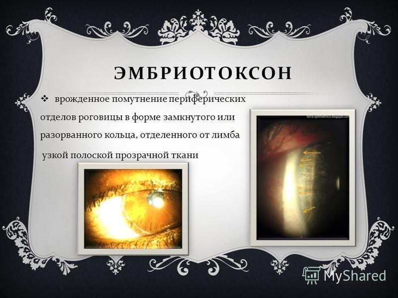 ЭМБРИОТОКСОН врожденное помутнение периферических отделов роговицы в форме замкнутого или разорванного кольца, отделенного от лимба узкой полоской прозрачной ткани