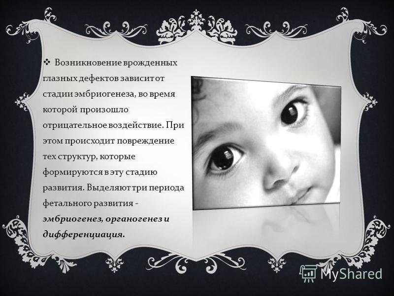 Возникновение врожденных глазных дефектов зависит от стадии эмбриогенеза, во время которой произошло отрицательное воздействие. При этом происходит повреждение тех структур, которые формируются в эту стадию развития. Выделяют три периода фетального р