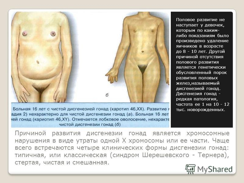 Причиной развития дисгенезии гонад является хромосомные нарушения в виде утраты одной Х хромосомы или ее части. Чаще всего встречаются четыре клинических формы дисгенезии гонад: типичная, или классическая (синдром Шерешевского - Тернера), стертая, чи