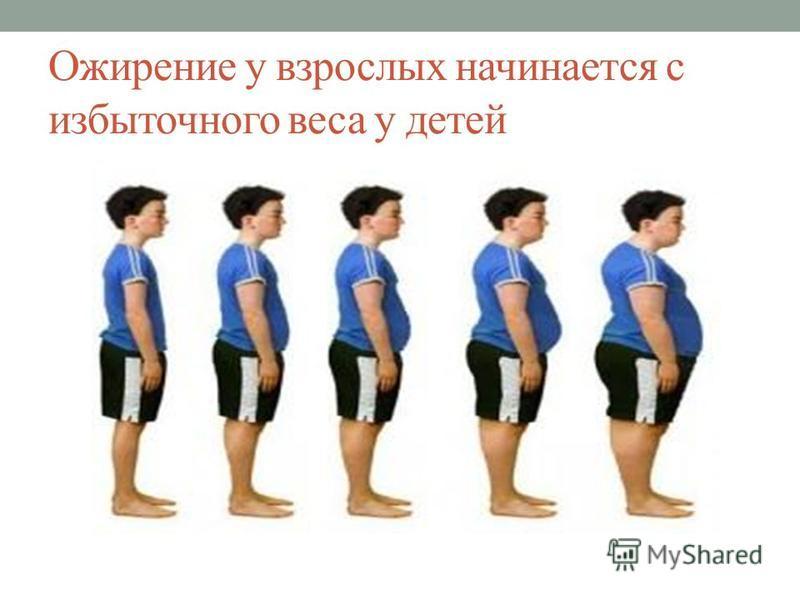Ожирение у взрослых начинается с избыточного веса у детей