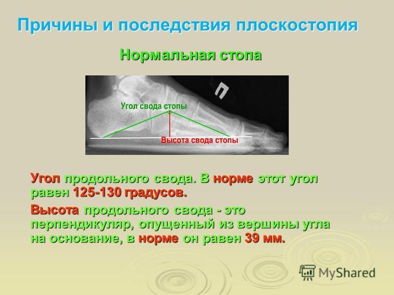 Нормальная стопа Причины и последствия плоскостопия Угол продольного свода. В норме этот угол равен 125-130 градусов. Высота продольного свода - это перпендикуляр, опущенный из вершины угла на основание, в норме он равен 39 мм.