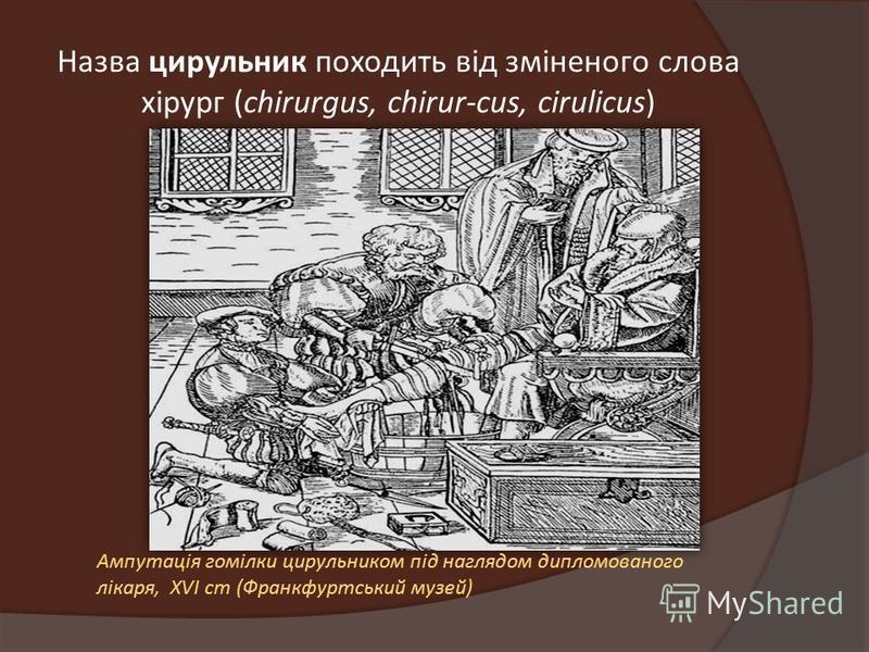 Назва цирульник походить від зміненого слова хірург (chirurgus, chirur-cus, cirulicus) Ампутація гомілки цирульником під наглядом дипломованого лікаря, XVI ст (Франкфуртський музей)