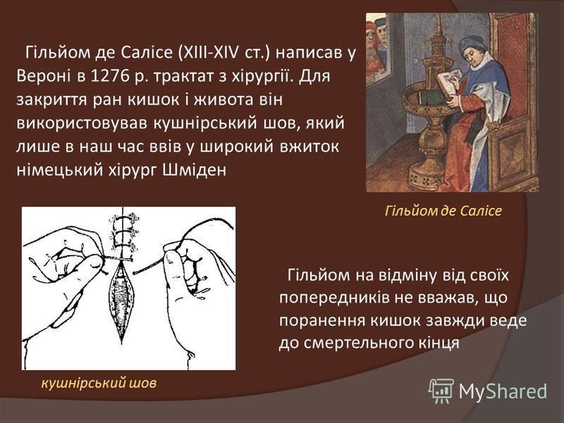 Гільйом де Салісе (XIII-XIV ст.) написав у Вероні в 1276 р. трактат з хірургії. Для закриття ран кишок і живота він використовував кушнірський шов, який лише в наш час ввів у широкий вжиток німецький хірург Шміден Гільйом де Салісе кушнірський шов Гі
