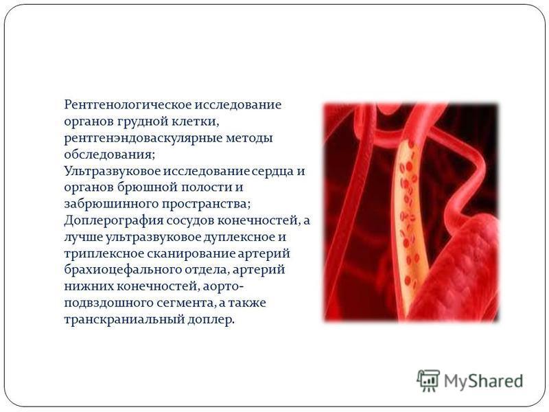 Рентгенологическое исследование органов грудной клетки, рентгенэндоваскулярные методы обследования; Ультразвуковое исследование сердца и органов брюшной полости и забрюшинного пространства; Доплерография сосудов конечностей, а лучше ультразвуковое ду