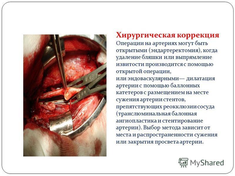 Хирургическая коррекция Операции на артериях могут быть открытыми (эндартеректомия), когда удаление бляшки или выпрямление извитости производится с помощью открытой операции, или эндоваскулярными дилатация артерии с помощью баллонных катетеров с разм