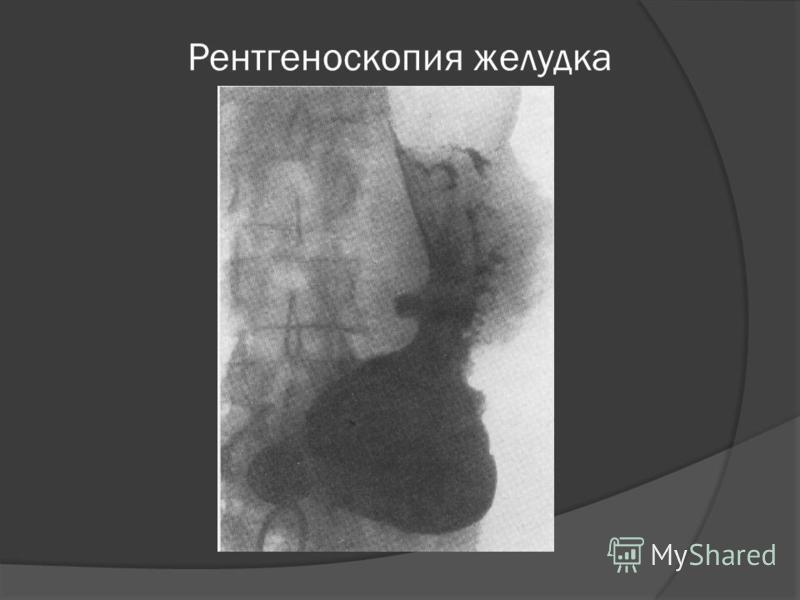 Рентгеноскопия желудка