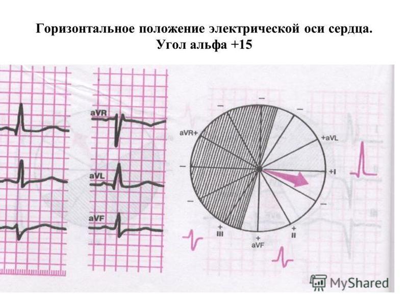 Горизонтальное положение электрической оси сердца. Угол альфа +15