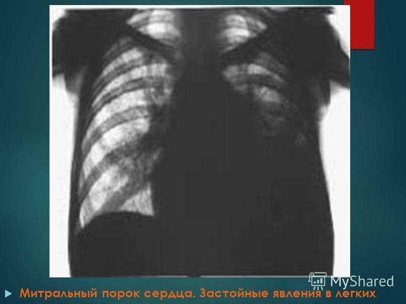 Митральный порок сердца. Застойные явления в легких