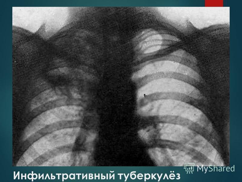 Инфильтративный туберкулёз