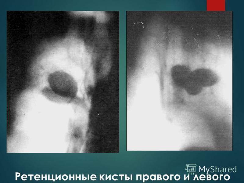 Ретенционные кисты правого и левого лёгких