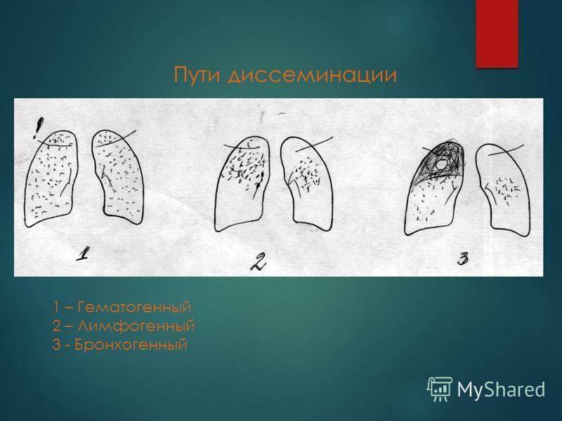 1 – Гематогенный 2 – Лимфогенный 3 - Бронхогенный Пути диссеминации