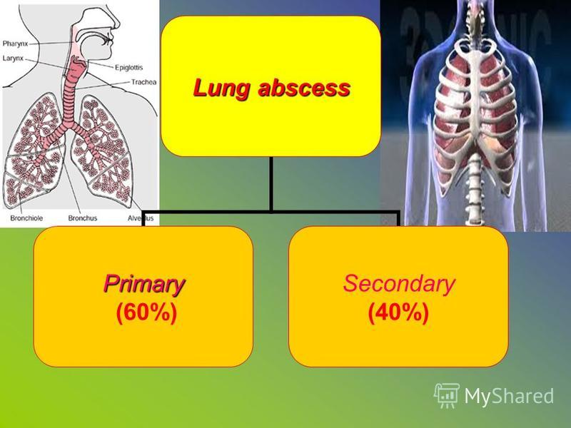 Lung abscess Primary (60%) Secondary (40%)