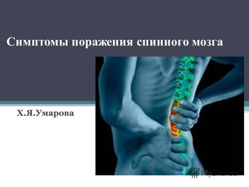 Симптомы поражения спинного мозга Х.Я.Умарова