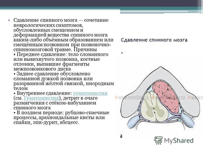 Сдавление спинного мозга Сдавление спинного мозга сочетание неврологических симптомов, обусловленных смещением и деформацией вещества спинного мозга каким-либо объёмным образованием или смещённым позвонком при позвоночно- спинномозговой травме. Причи