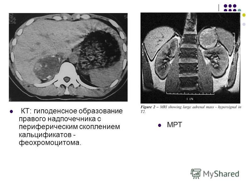 КТ: гиподенсное образование правого надпочечника с периферическим скоплением кальцификатов - феохромоцитома. МРТ