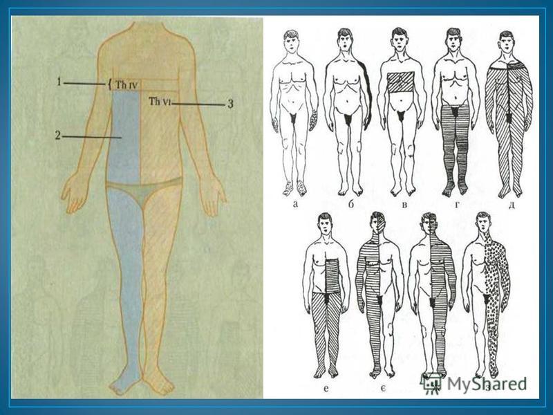 Периферический ( невритический, полиневритический, плексарный, ганглионарный, радикулярный ) Спинальный ( сегментарный диссоциированный, проводниковый, синдром Броун - Сикара ) Церебральный ( альтернирующий, лемнисковый, таламический, капсулярный, ко