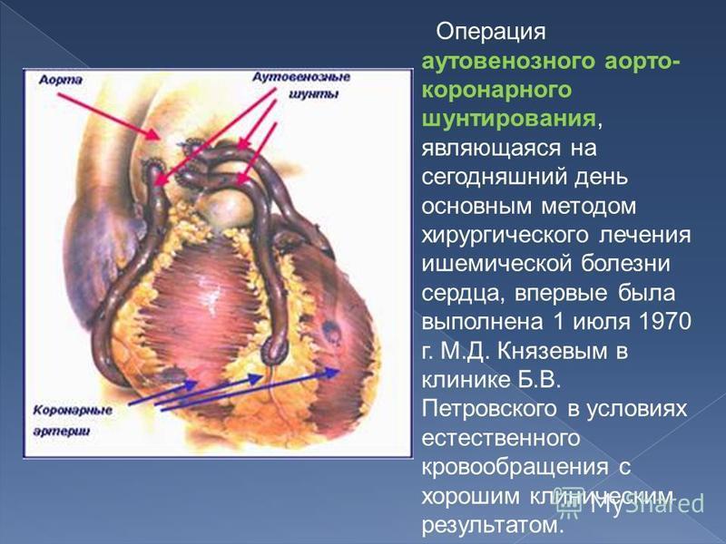 Операция ауто венозного аортокоронарного шунтирования, являющаяся на сегодняшний день основным методом хирургического лечения ишемической болезни сердца, впервые была выполнена 1 июля 1970 г. М.Д. Князевым в клинике Б.В. Петровского в условиях естест