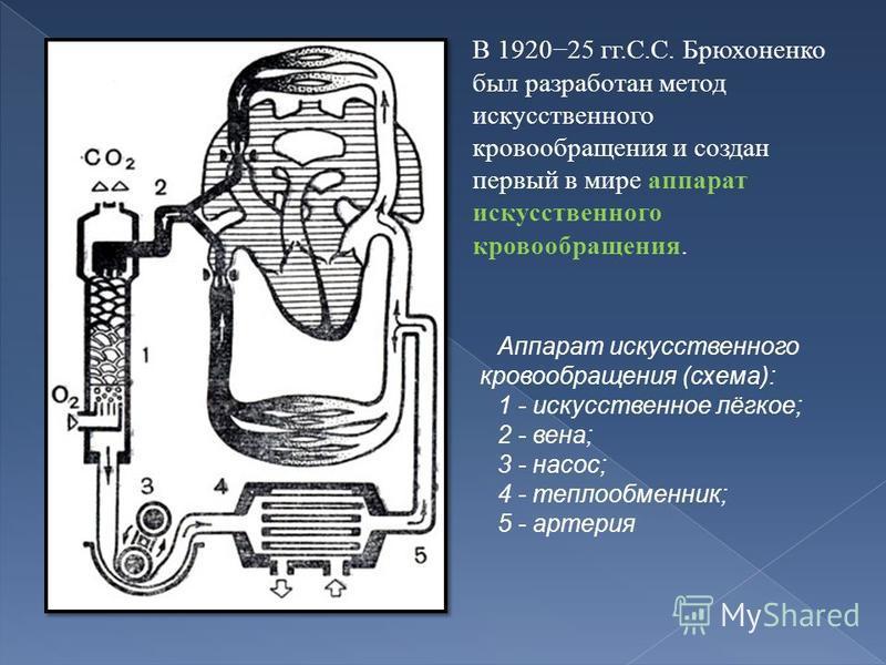 В 192025 гг.С.С. Брюхоненко был разработан метод искусственного кровообращения и создан первый в мире аппарат искусственного кровообращения. Аппарат искусственного кровообращения (схема): 1 - искусственное лёгкое; 2 - вена; 3 - насос; 4 - теплообменн