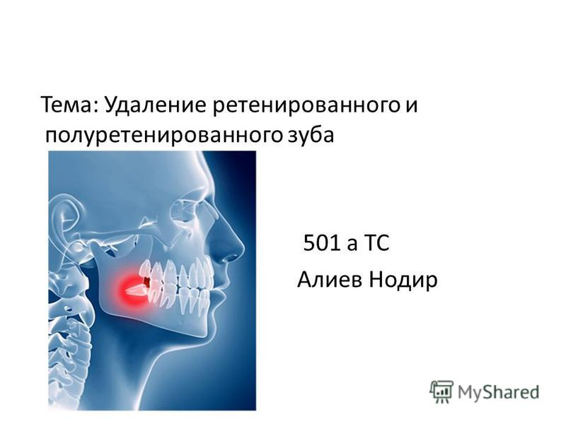 Тема: Удаление ретенированного и полуретенированного зуба 501 а ТС Алиев Нодир