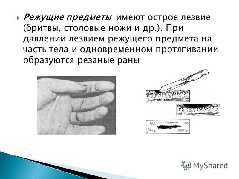 Режущие предметы имеют острое лезвие (бритвы, столовые ножи и др.). При давлении лезвием режущего предмета на часть тела и одновременном протягивании образуются резаные раны