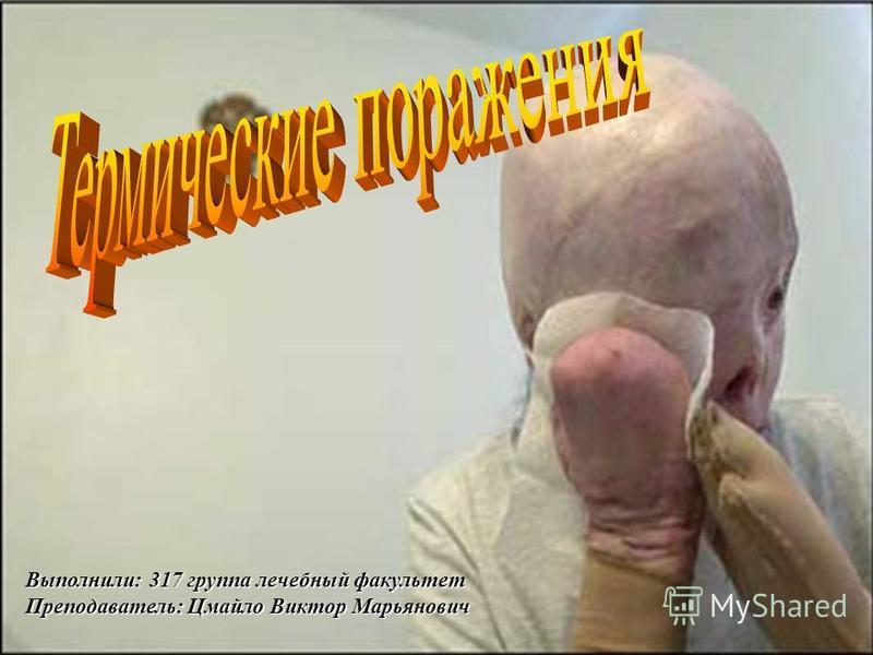Выполнили: 317 группа лечебный факультет Преподаватель: Цмайло Виктор Марьянович